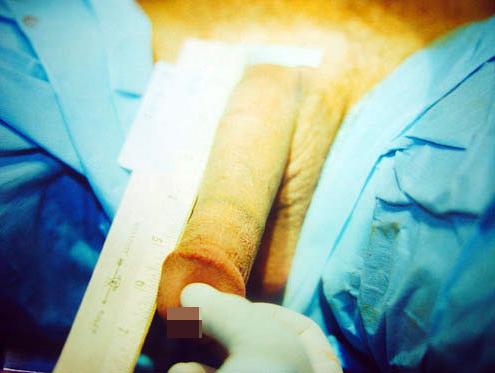 Как проводится операция на скрытый половой член