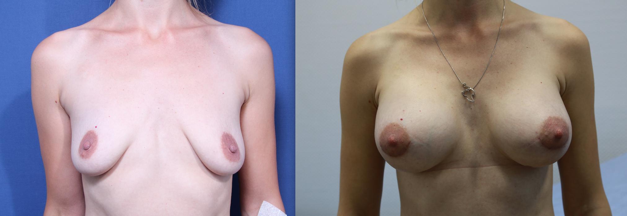 Быстрое средство увеличить грудь