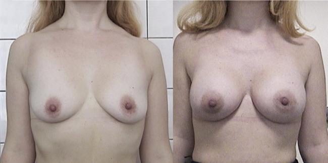 увеличенная грудь после месячных