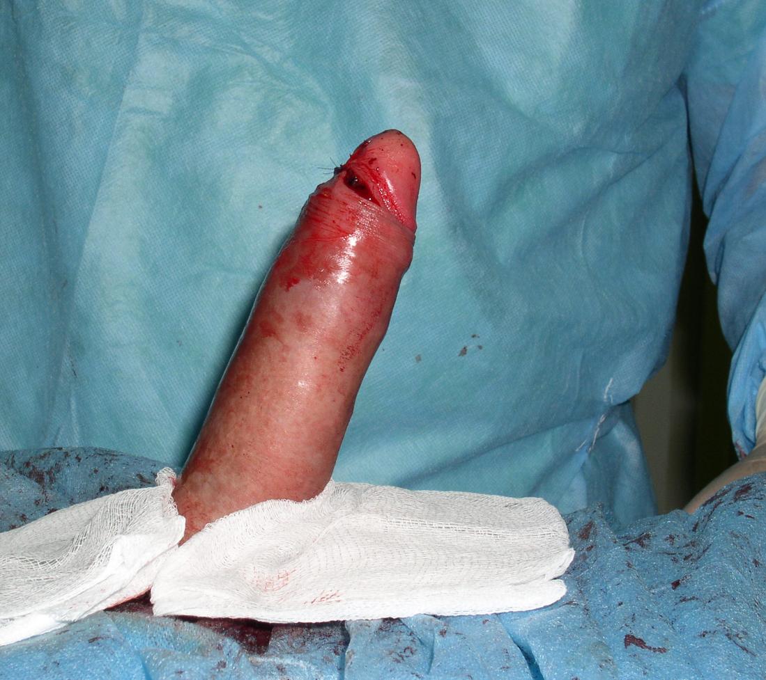 Если вы думаете что у вас маленький пенис посмотрите на результаты исследования
