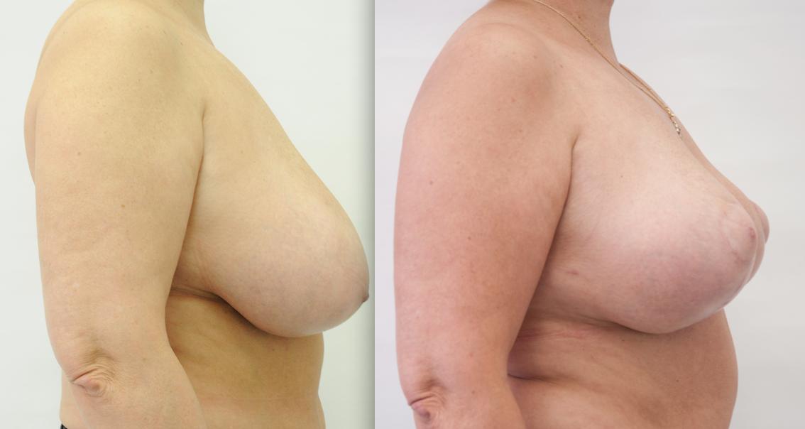 сделать уменьшение груди