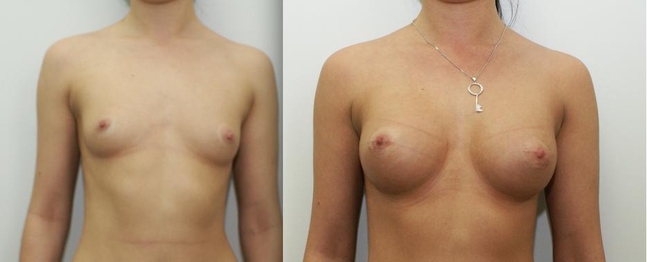 Виды имплантов в грудь