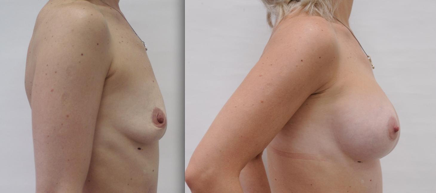 увеличение груди до и после видео
