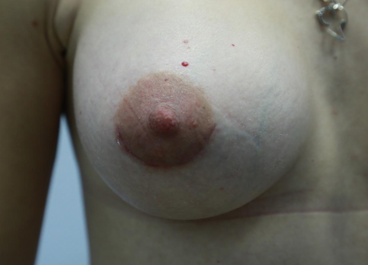 увеличение груди до второго размера
