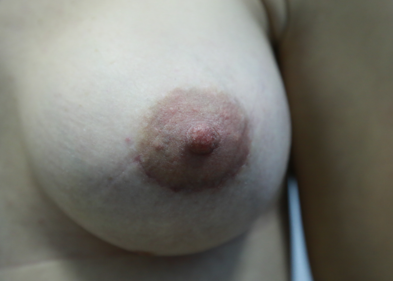 увеличение груди акция 2015