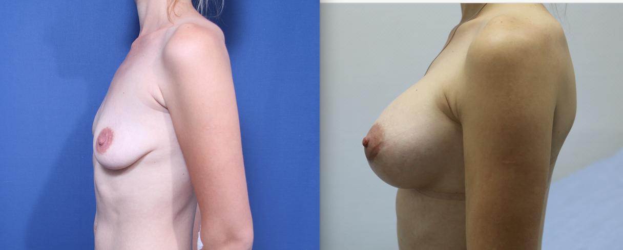 увеличение груди после грудного вскармливания
