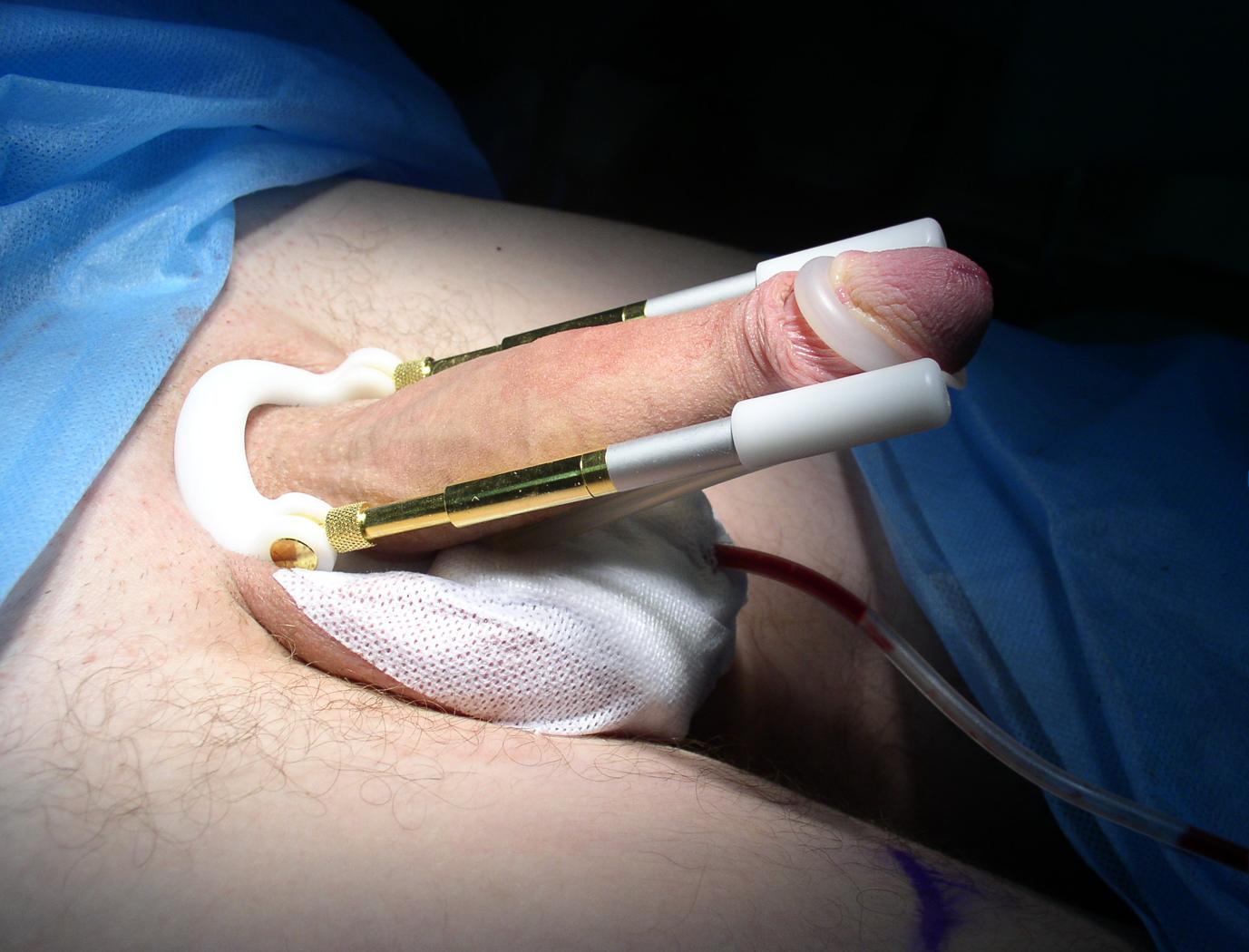 Как можно увеличить половой член без операции