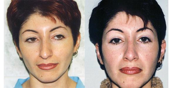 Почему у армян нос с горбинкой