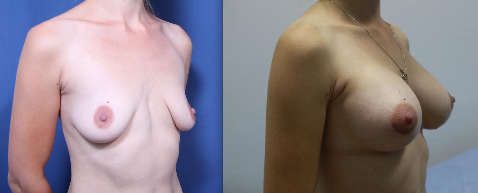 увеличение груди после кормления