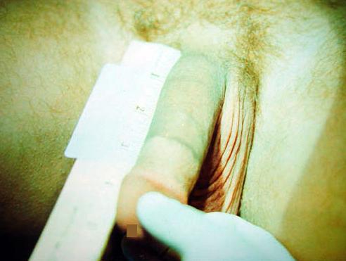 Стоимость операции по увеличению полового члена