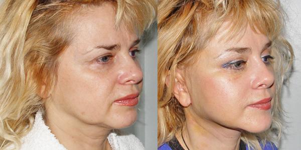 липосакция второго подбородка фото до и после