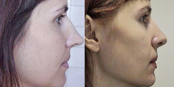 Пластика носа рязань отзывы