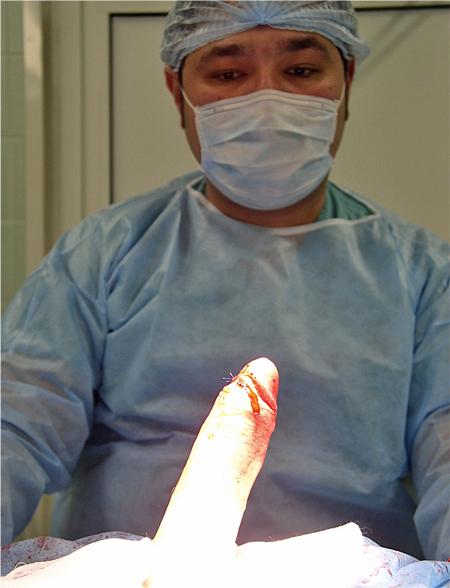 Увеличение полового члена хирургическим методом
