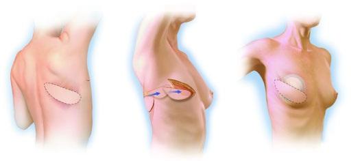Пластика груди грудное вскармливание
