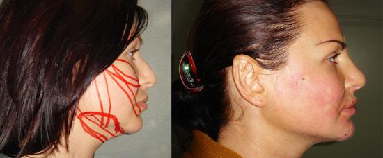 Исправление перегородки носа без операции стоимость