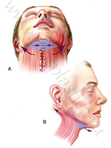 липосакция шеи