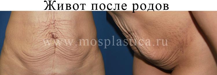 пластика после родов фото до и после