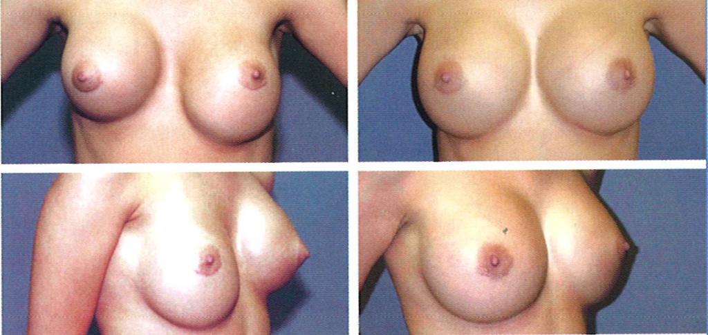 Увеличение груди после операции нельзя