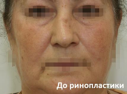 Екатерина варнава ринопластика фото до и после