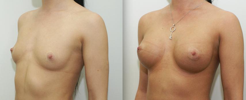 Отек руки после операции на грудь