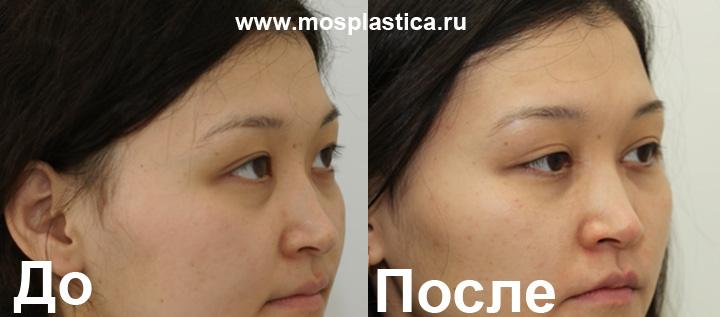 http://www.mosplastica.ru/upload/medialibrary/829/8292868cc2ec3f2ddb2369410ccff0a2.jpg