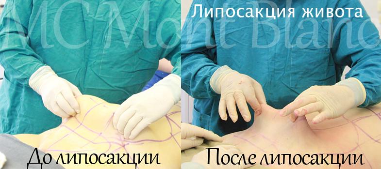 удаление жира с живота челябинск