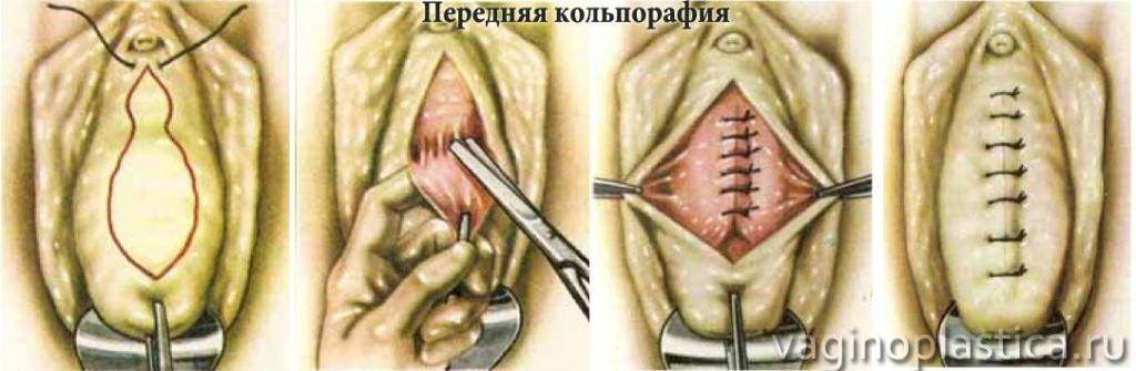 Сужение влагалища. Преимущества сужения влагалища операцией в Москве