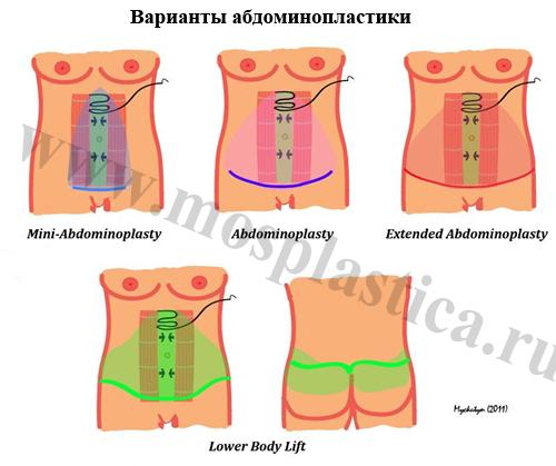 убрать жир операция