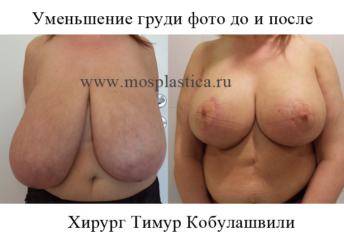 Какие способы увеличивают грудь