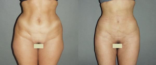 как откачивают жир с живота видео