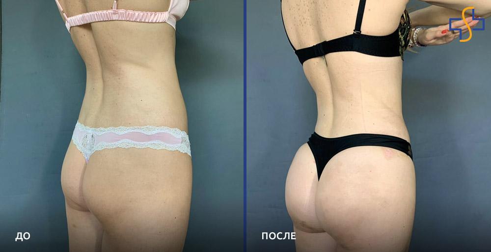 фото до и после проведения вайзер липосакции на ягодицах