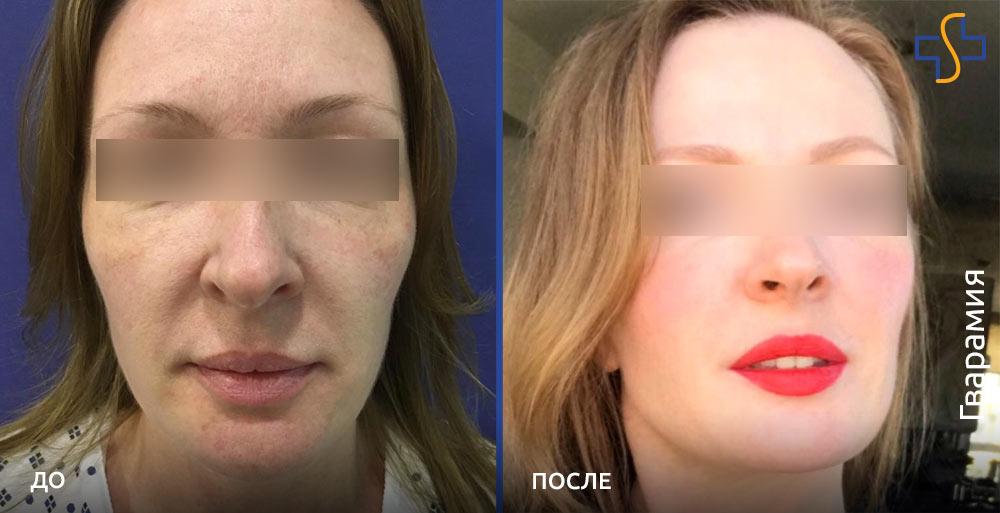фото до и после SMAS-лифтинга лица