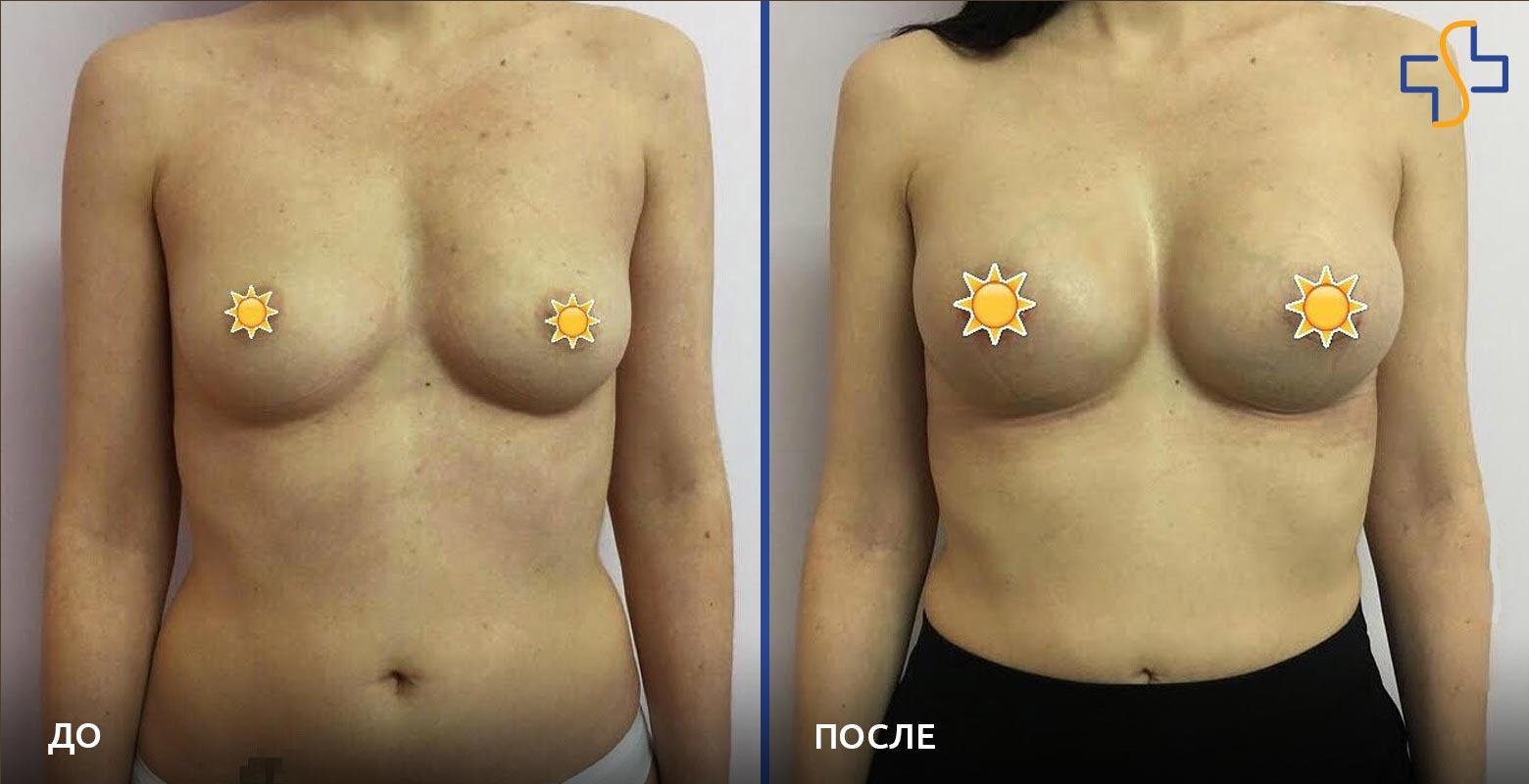 фото до и после проведённой операции по увеличению груди