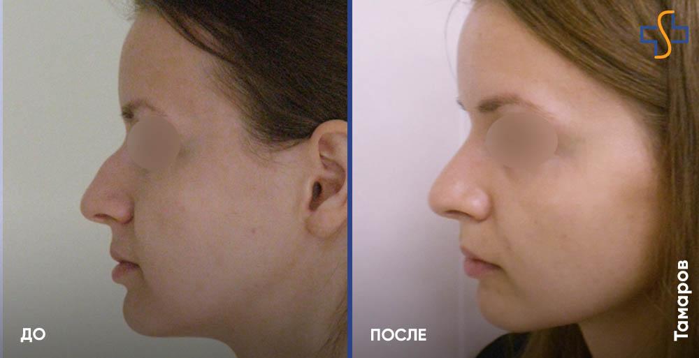 фото до/после выравнивания носовой перегородки