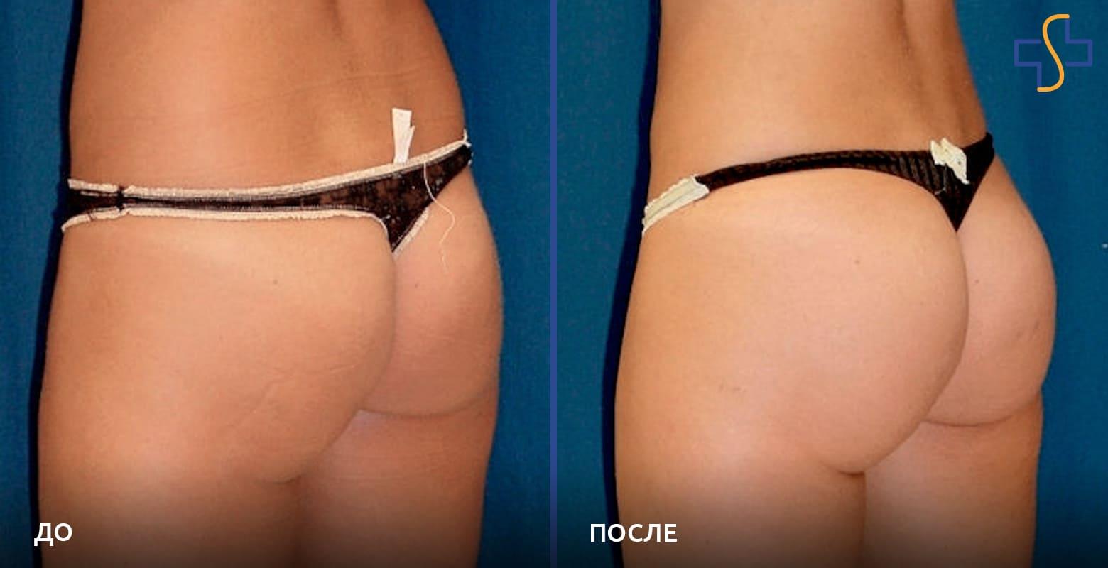 фото до/после проведенной глютеопластики