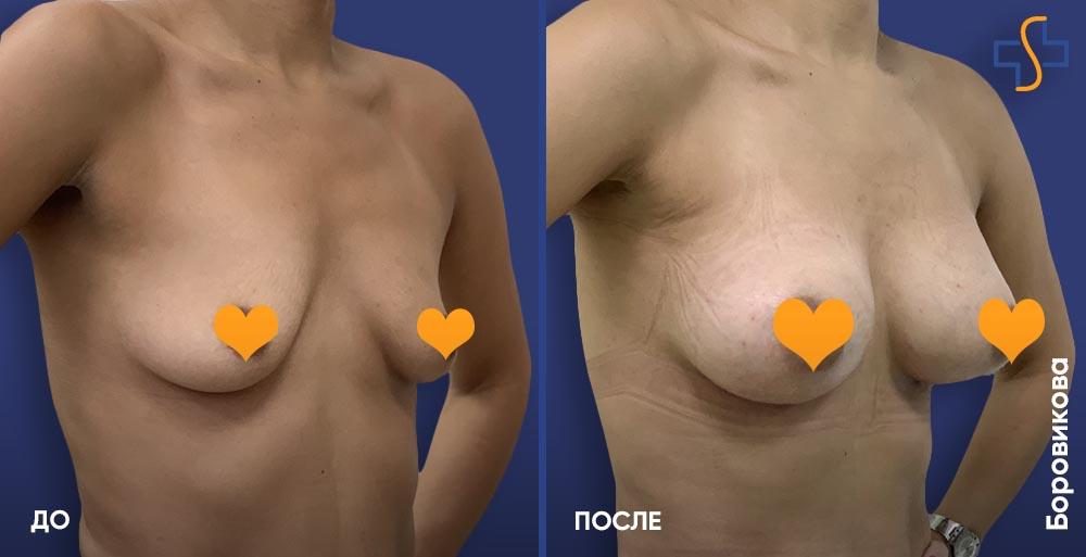 фото до и после липофилинга груди