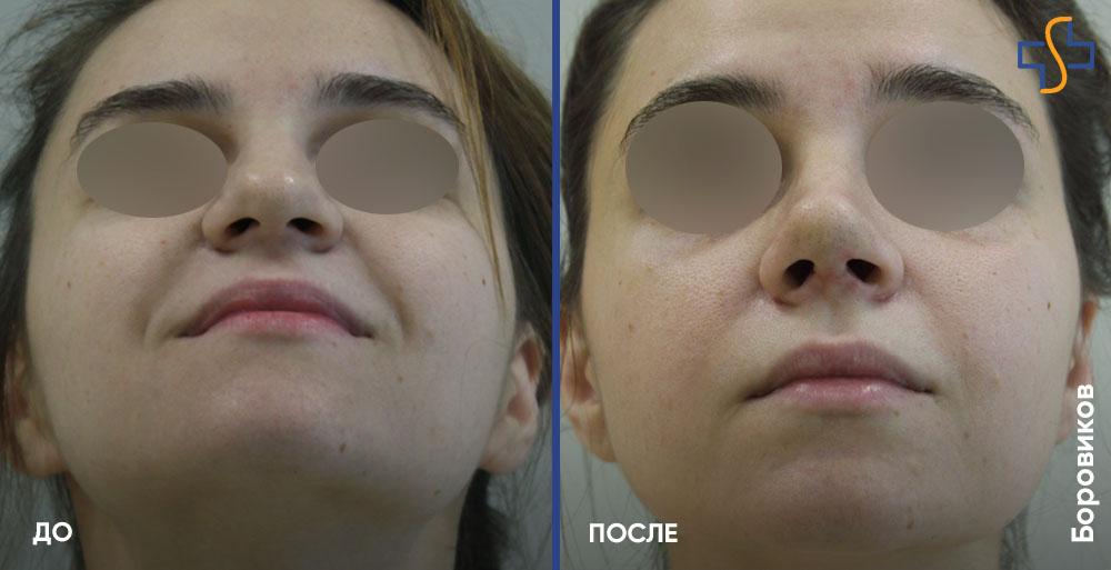 денис гусев фото до и после ринопластики пристройки веранды сложнее