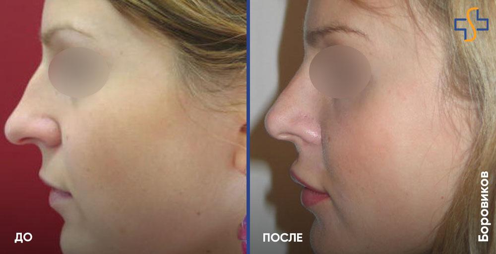 фото до/после пластики носа