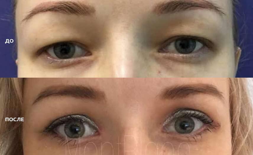 фото до и после проведённой операции по пластике век