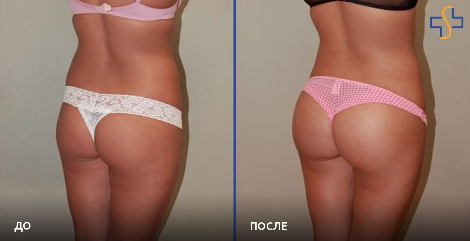 фото до/после проведённой глютеопластики