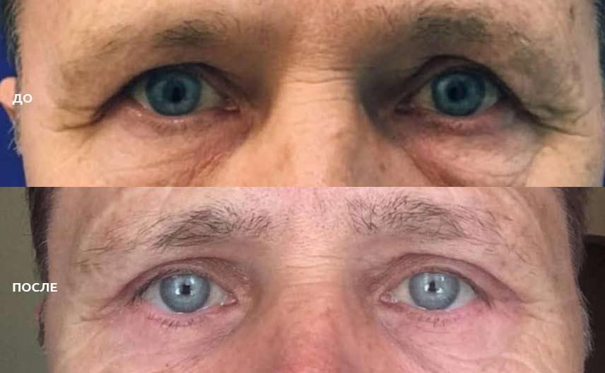 фото до и после операции по блефаропластике у мужчин