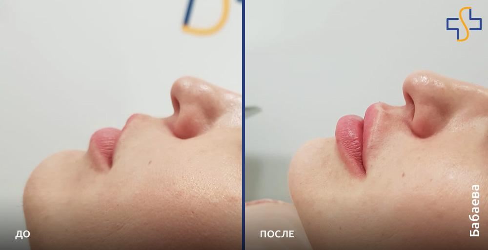 фото до/после проаедённой PRP-терапии