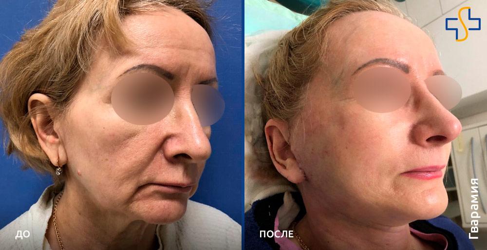фото до/после круговой подтяжки лица