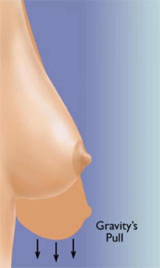 схема: методика уменьшения груди - SPAIR и Graf