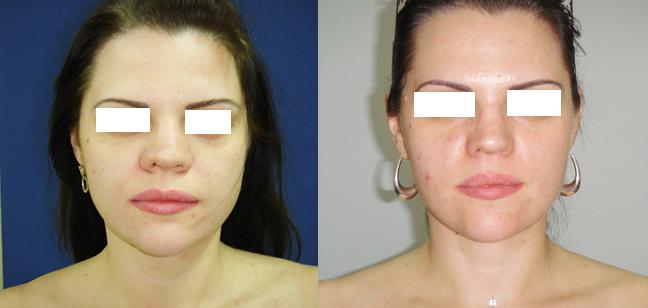 Перелом носа лечение