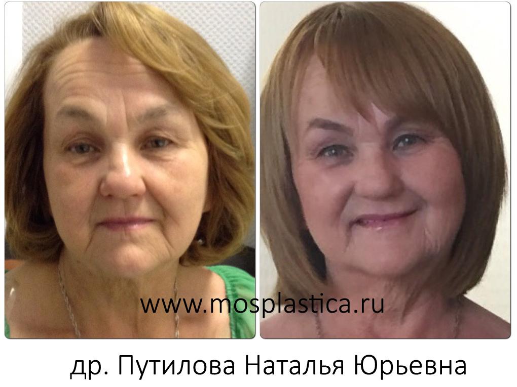 красотка, тиогамма в косметологии фото до и после расширает линейку