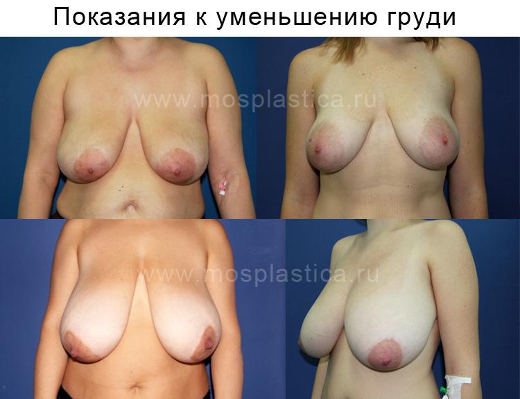 Сколько стоит операция по удалению груди