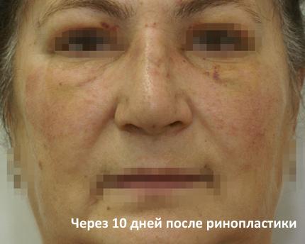 После ринопластики на 10й день