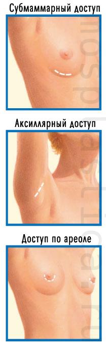 Доступы при увеличении груди имплантами