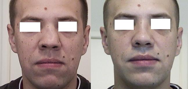 Сломан нос операция